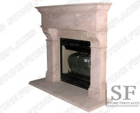 Cast Stone Fireplace Mantel, Surround, Rochester, Fireplaces