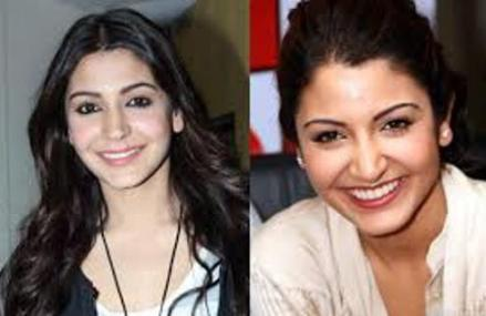 anushka's lip job-showbizbites-02