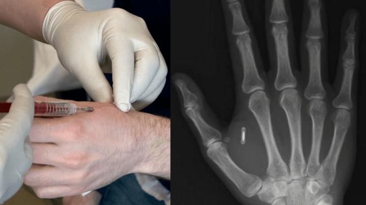Implantação dos chips acontece entre o polegar e o indicador