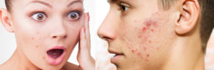 Acne -Types, Causes, Symptoms,Treatment, Remedies