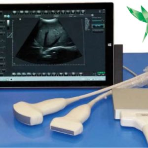 Ultrasound telemedicine diagnostic systems