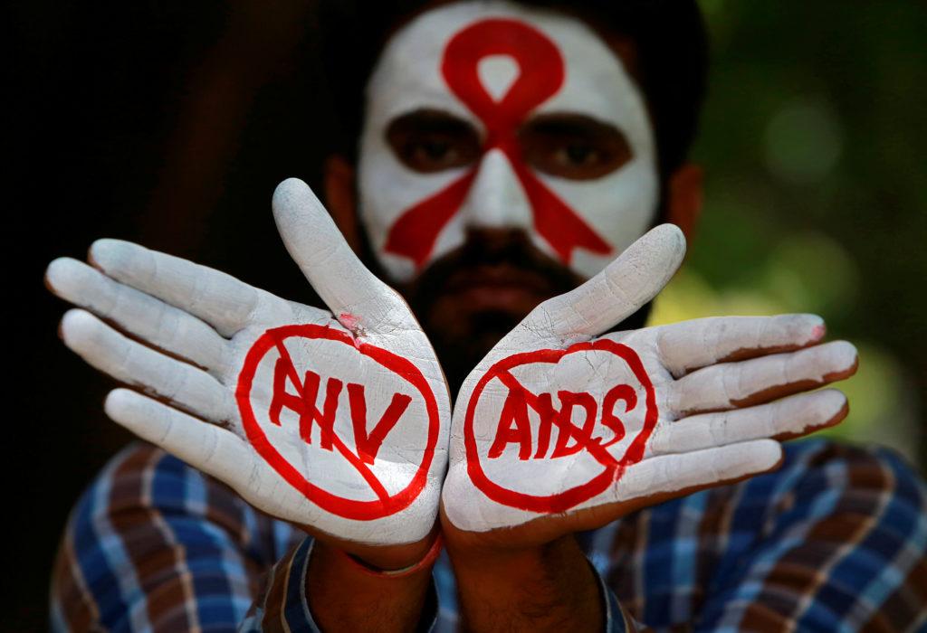 """HIV e falsi miti: """"il morbo dei gay"""" che sconvolse il mondo"""