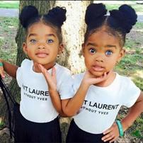Disa gjera interesante qe duhet te dini per binjaket.
