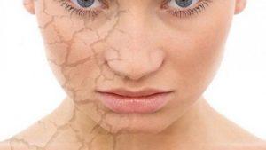 Si te eliminoni rrudhat teresisht nga fytyra. macadamia per rrudhat