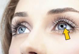 Dridhja e syrit. Pse ndodh ky fenomen dhe cfare problemesh paralajmeron.