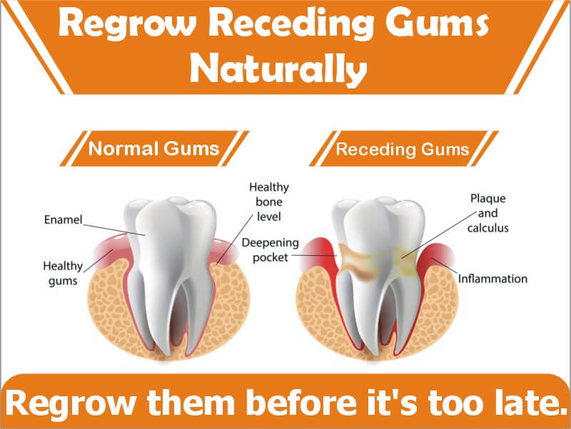 Top 5 Natural Gum Regrowth Products For Receding Gums ...