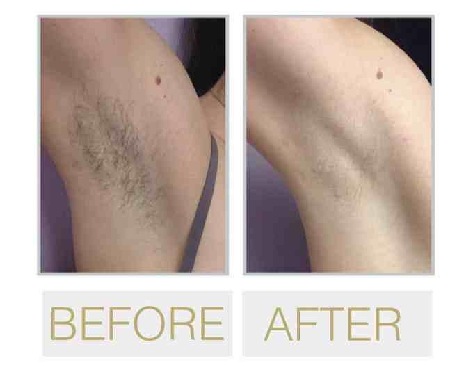 Best San Francisco Laser Hair Removal Doctor Near Me + Hair ...