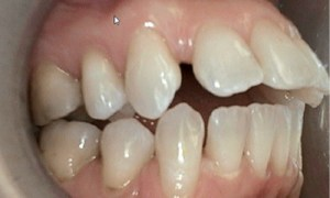 Atlanta Dentist Same Day Crowns