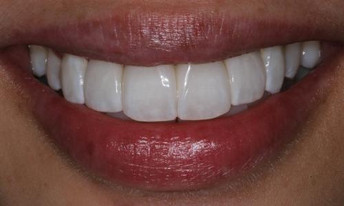 Atlanta Dentist Skip Dolt Bioclear