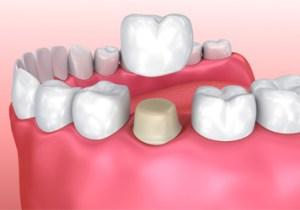 emergency dental crown atlanta dentist