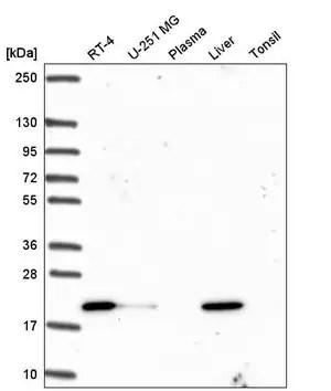 Anti-OIP5 antibody produced in rabbit Prestige Antibodies