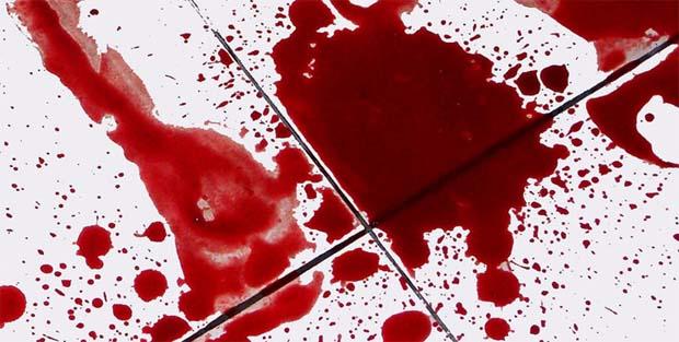 ▷ O que significa Sonhar com Sangue? -【IMPERDÍVEL】