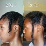 3 huiles essentielles contre la chute de cheveux