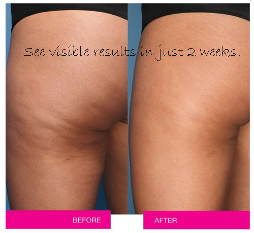 Smooth moves anti-cellulite cooling gel  for visible results.