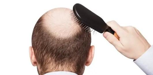 Informasi terkait dengan cara mencegah rambut rontok