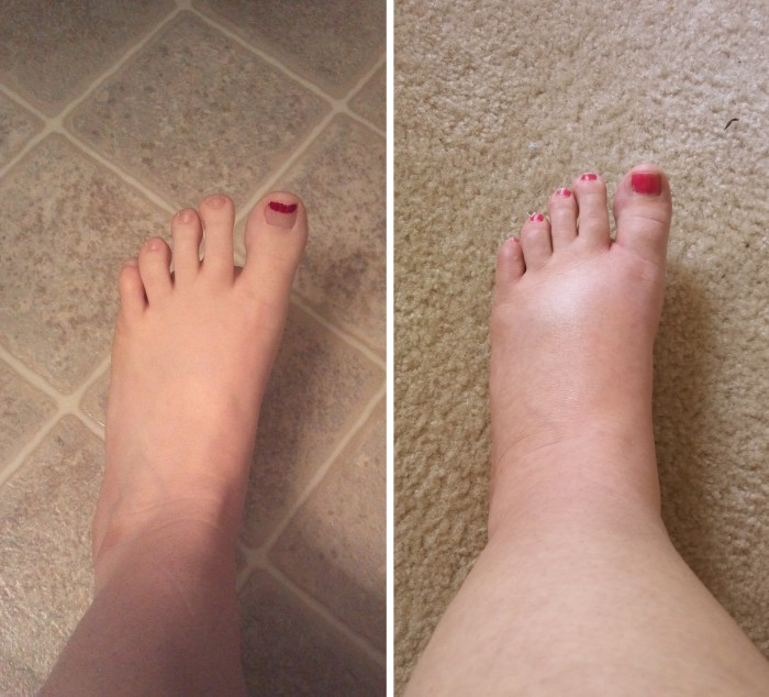 What To Do When Pregnant With Swollen Feet