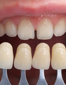 Porcelain veneers also simi valley cosmetic dentist rh simidentist