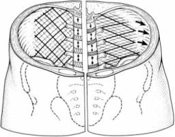 Strengthening Transverse Abdominis or Pitfalls of the Core