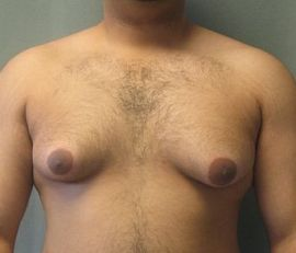 picture of a steroid user that is suffering from Gynecomastia