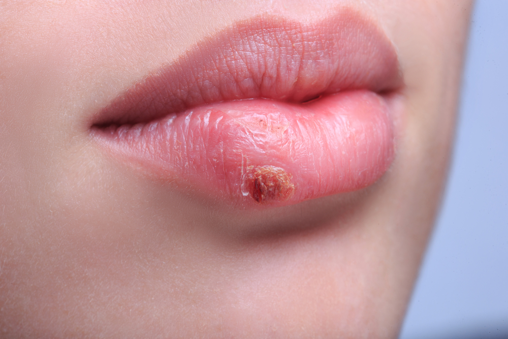 Heal A Cold Sore (Fever Blister) Naturally And Faster