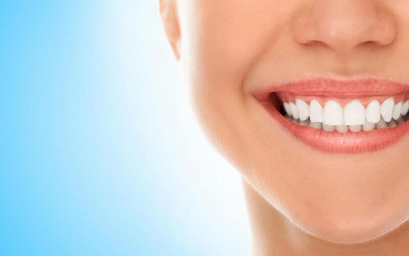 Teeth Whitening - 5 Natural Methods That Work