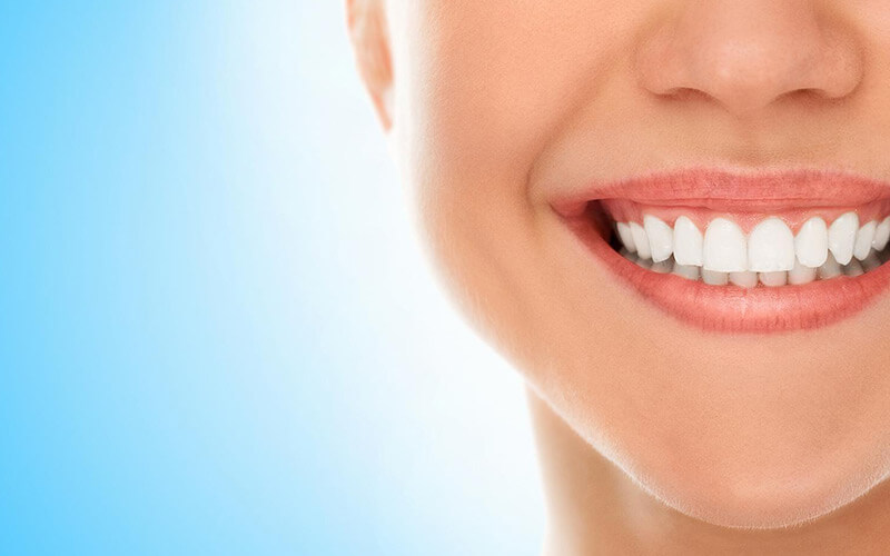 Teeth Whitening - 5 Natural Methods That Work