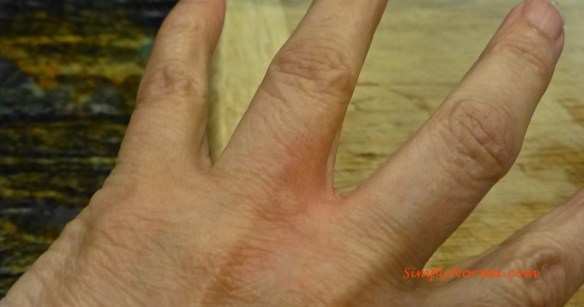 Allergic Hand