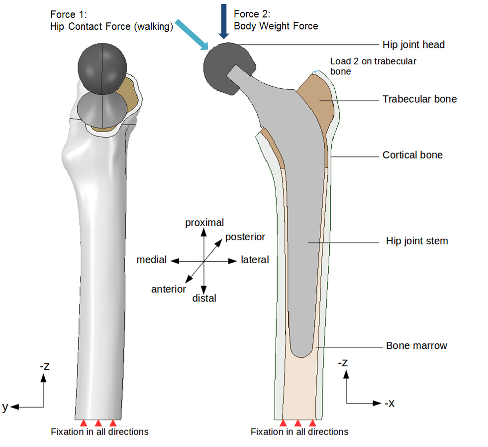 hight resolution of in this step by step tutorial we will focus on a hip joint prosthesis model considering different material combinations for our artificial hip joint to
