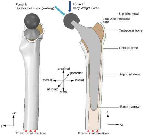 small resolution of in this step by step tutorial we will focus on a hip joint prosthesis model considering different material combinations for our artificial hip joint to