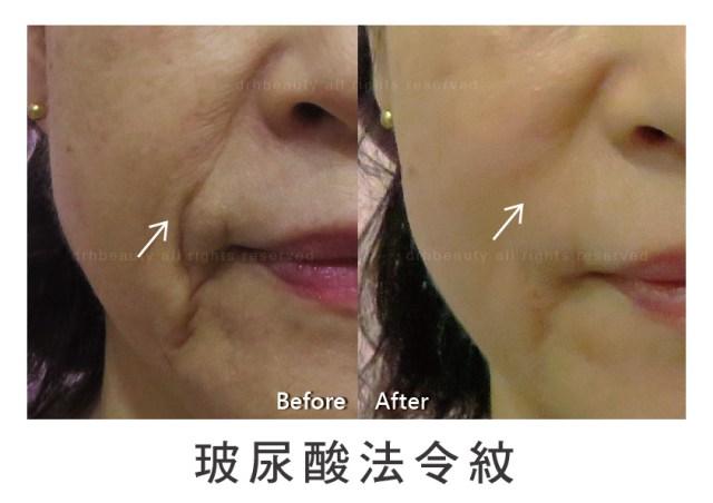 玻尿酸 鼻子 山根 法令紋 淚溝 下巴
