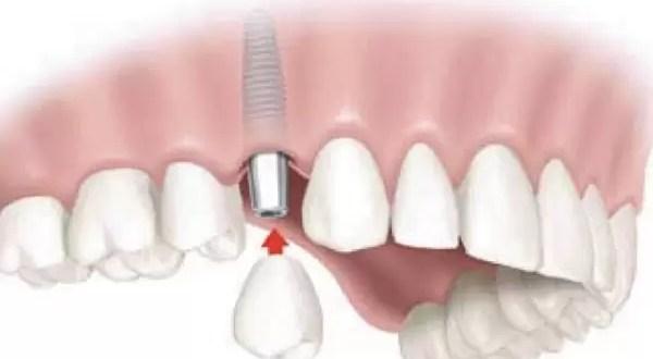 ¿Qué son y cómo trabajan los implantes dentales?