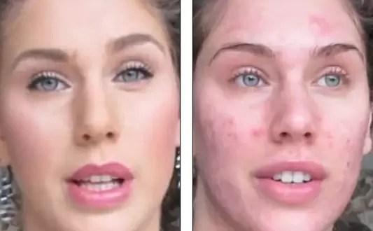 Aprende a maquillarte para tapar tu acné