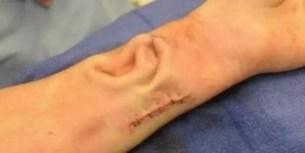 Le injertan la oreja en un brazo y salva su vida - Fotos