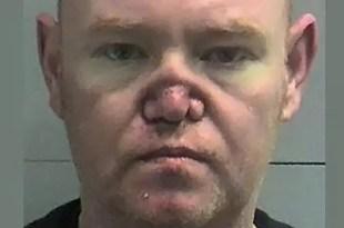 Millonario pierde la nariz por adicción a la cocaína