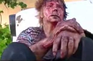 Video fuerte: Así quedó luego de feroz golpiza de su marido