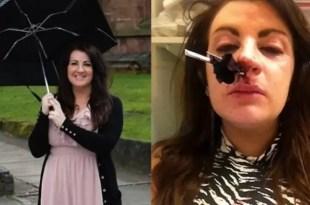 Borracha se incrustó un paraguas en la nariz - Foto