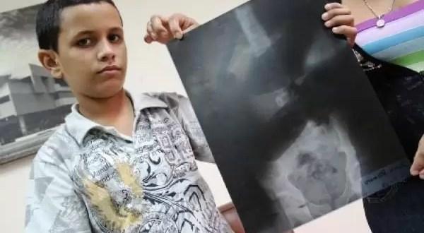 Médico del siglo pasado muerto aparece en radiografía