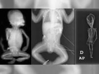 Video y fotos: Extraño esqueleto ¿humano o extraterrestre?