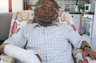 Insólito: hombre enjauló su cabeza para no fumar - Video
