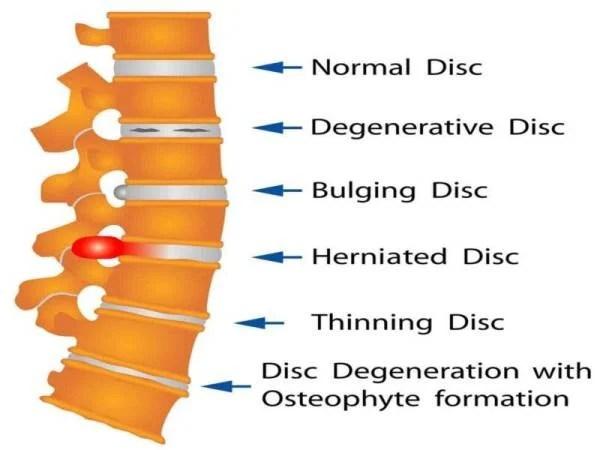 STRUKTUR disc pada tulang belakang manusia.