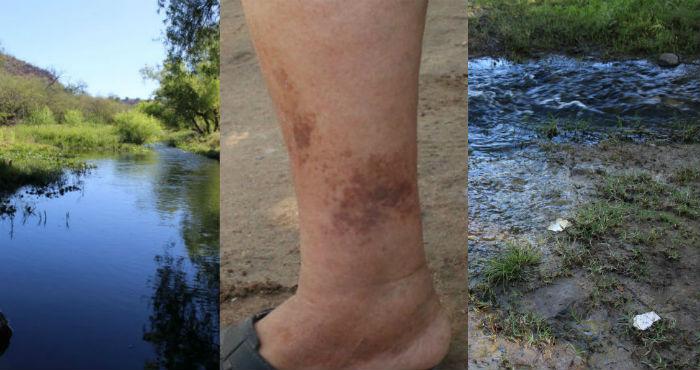 Los habitantes del río Sonora han enfermado de lesiones en la piel.Foto: Especial.