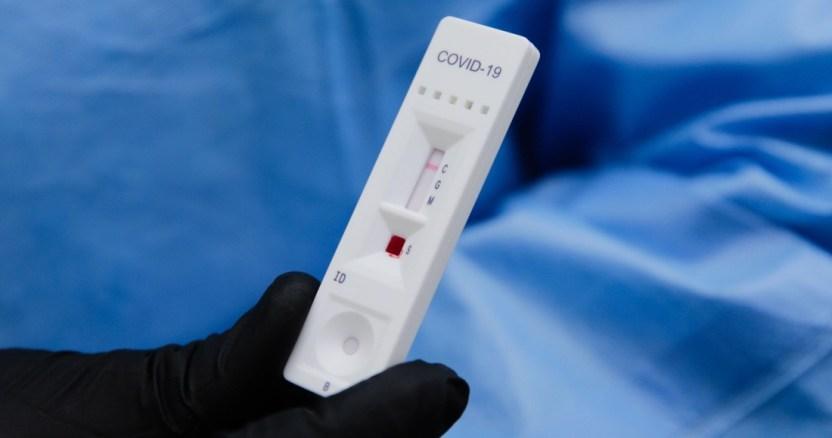 covid 19 19 - Australia crea una prueba molecular de diagnóstico de COVID-19 precisa; da resultados en 20 minutos