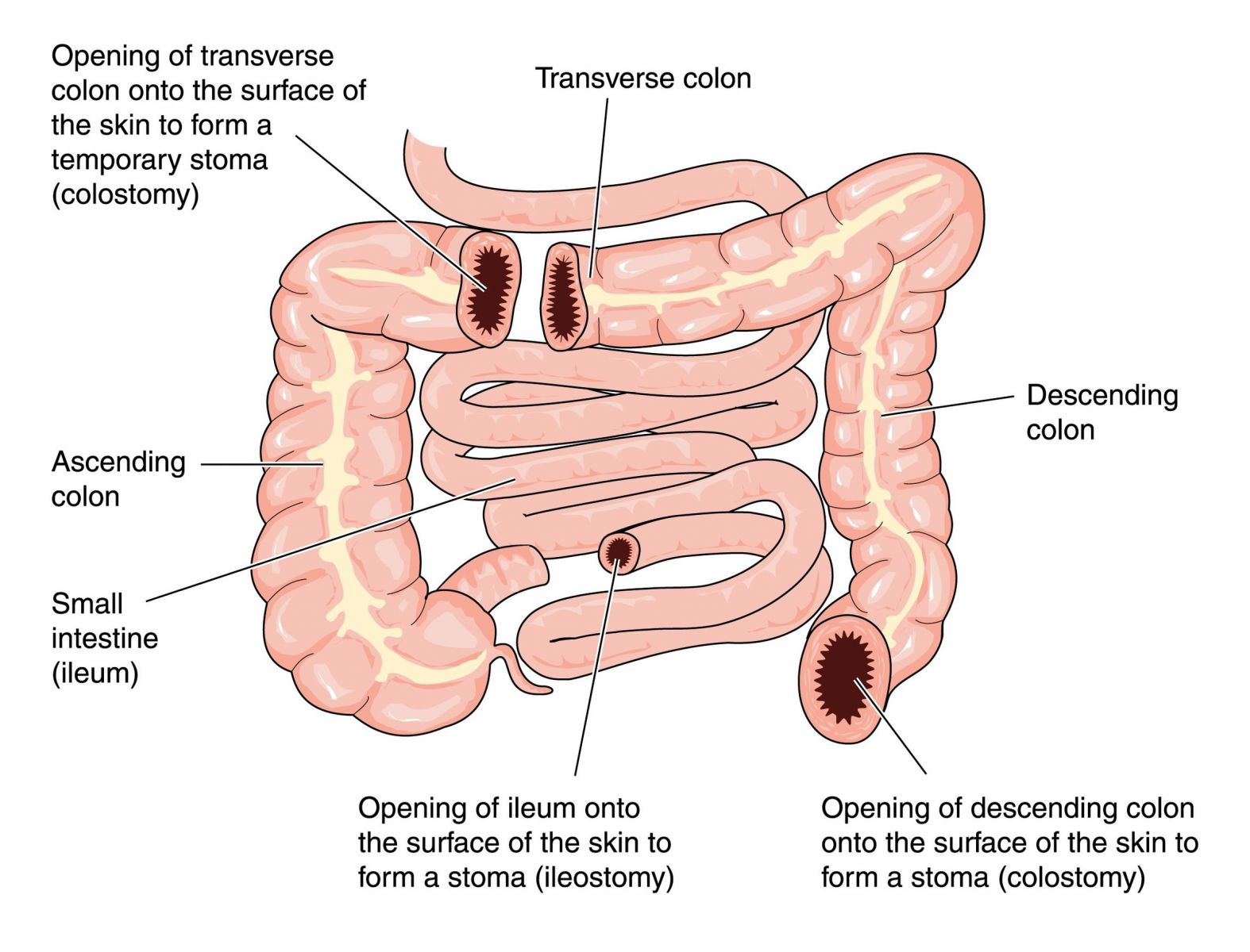 diagram of large intestine and colon radio wiring for 1998 chevy silverado small free engine image