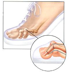 mallet toe surgery