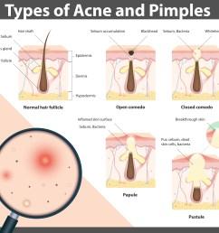 acne diagram jpg [ 5500 x 5000 Pixel ]