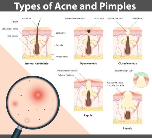 small resolution of acne diagram jpg