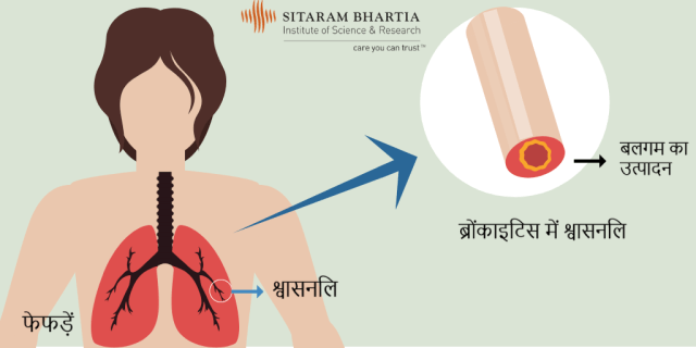 bronchitis symptoms in hindi