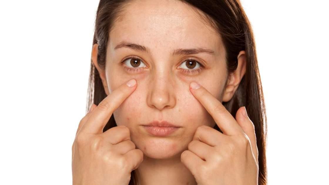 Tratamento caseiro para olheira