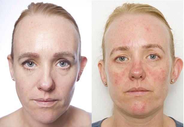 consequências de não retirar a maquiagem com demaquilante