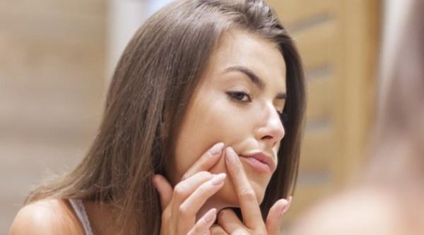 alimentos que causam a acne